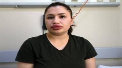 -ADANA'DA VATANDAŞLARA BOTOKS YAPAN KUAFÖR HAKKINDA SUÇ DUYURUSUNDA BULUNULDU