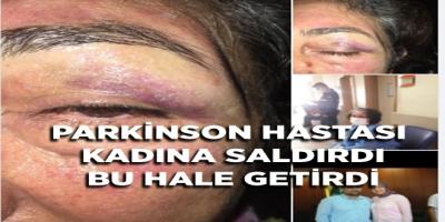 PARKİNSON HASTASI KADINA SALDIRARAK BU HALE GETİRDİ